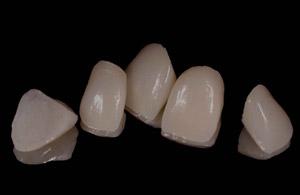 установка зубных виниров цена