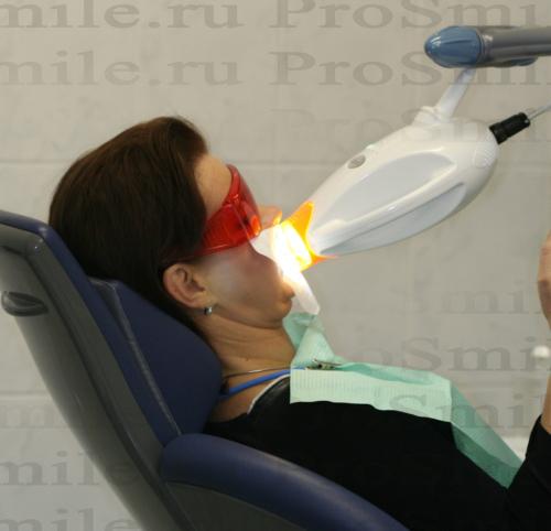 отбеливание зубов зум 3 цена